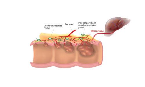дифференциальная диагностика геморроя и рака