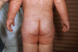 Аллергическая сыпь как реакция на вакцину АКДС