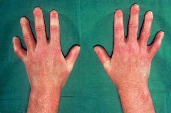 Склеродермия ладони