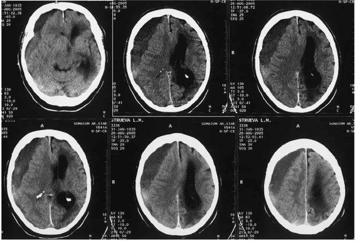 Смещение структур мозга