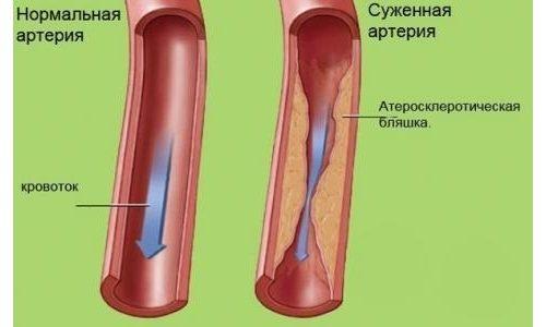 При регулярном применении Троксевазин повышает тонус вен, снижает свёртывание крови