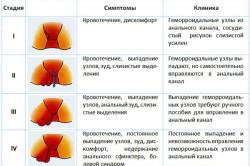 Стадии и симптомы геморроя