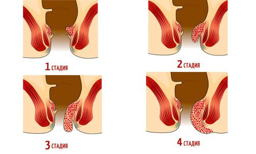 На последних стадиях малоинвазивные техники или классическая геморроидэктомия становятся единственным вариантом терапии варикозного расширения анальных вен