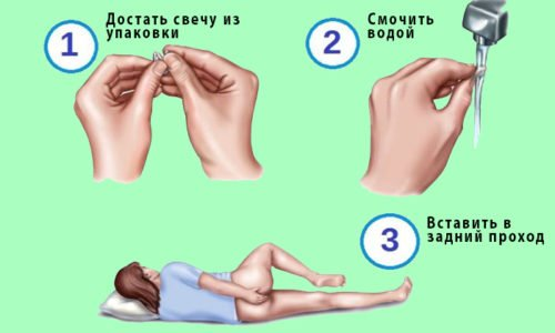 После использования суппозитория полностью усваивается кишечными стенками и выводится в форме метаболитов и неизменном виде