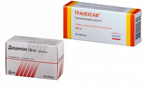 Для остановки кровотечения врачи нередко используют такие препараты, как Транексам или Дицинон