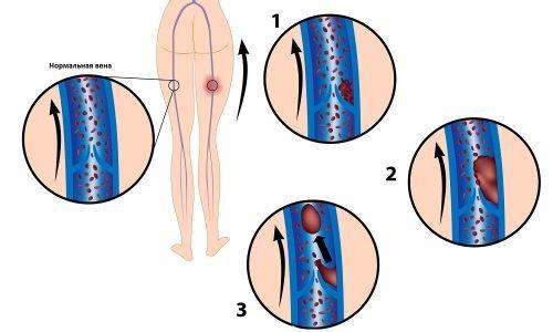 При обострении гель и капсулы Троксевазина используются вместе