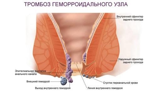 Острый геморрой характеризуется тромбозом геморройных шишек