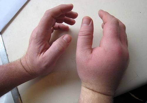 ушиб и отечности руки