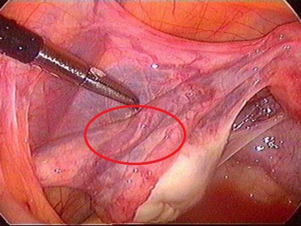 варикозные вены таза