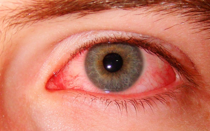 Ячмень глаза
