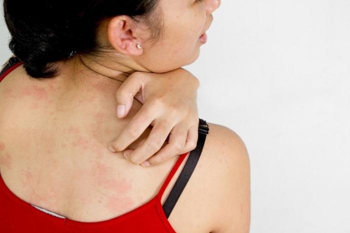 Зуд кожи спины