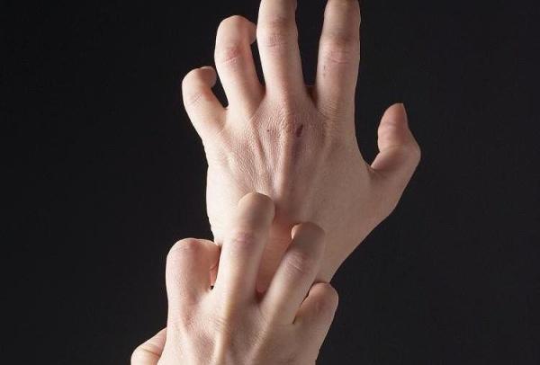 чешутся руки